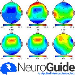NeuroGuide Deluxe QEEG - [NG]