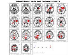 Neurostat for NeuroGuide - [NS]